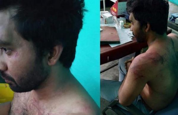 Doctors in Assam boycott OPD services protesting assault on colleague, 24 assailants arrested