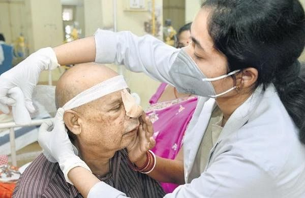 Mucormycosis patients need 2 years of medical management post-surgery: AIIMS-R doctors